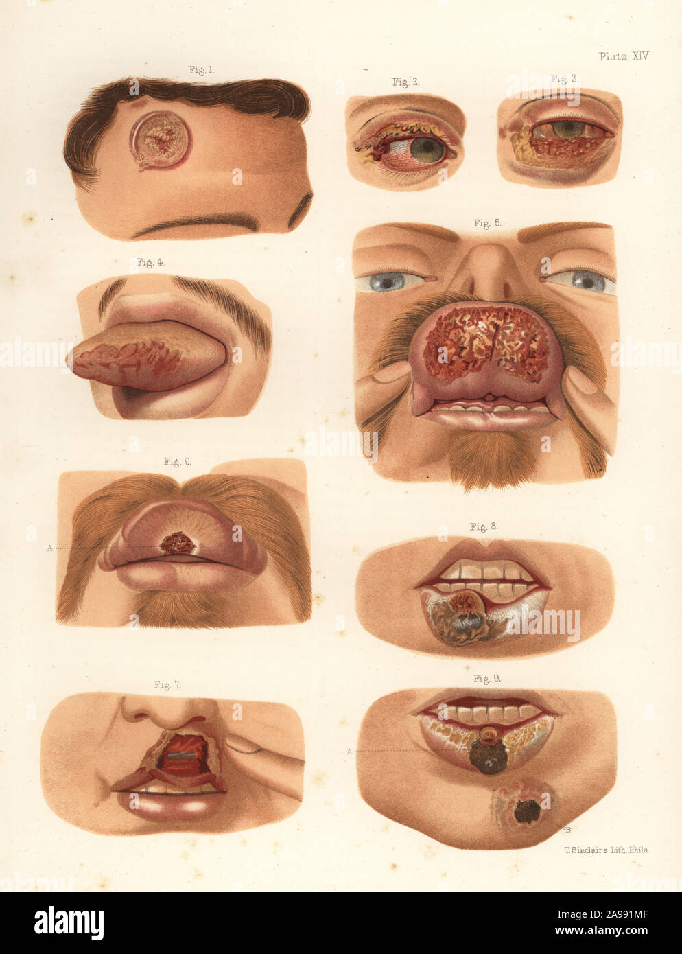 Syphilitic chancres on the face. Indurated chancres to the forehead, eyelids, tongue and lips, and ecthymatous chancre to the chin. Chromolithograph by T. Sinclaire from Freeman J. Bumstead's Atlas of Venereal Diseases, Henry C. Lea, Philadelphia, 1868. First American edition of Auguste Cullerier's Precis iconographique des maladies veneriennes. Chromolithograph by T. Sinclaire from Freeman J. Bumstead's Atlas of Venereal Diseases, Henry C. Lea, Philadelphia, 1868. First American edition of Auguste Cullerier's Precis iconographique des maladies veneriennes. Stock Photo