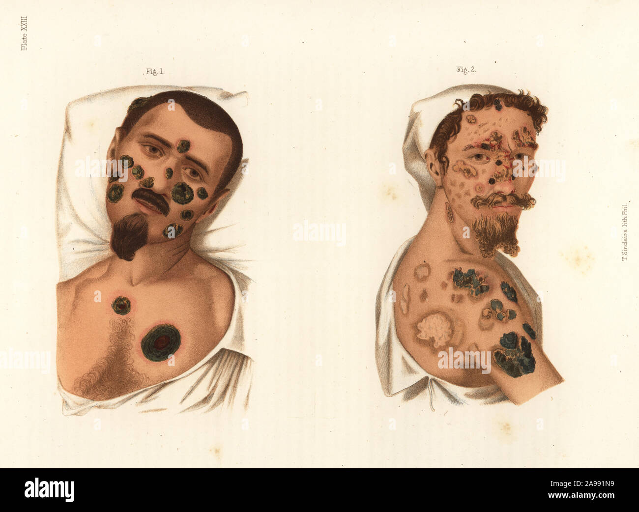 Secondary period syphilis symptoms on the body. Bullous syphilide rupia on the face treated with mercury 1, bullous syphilide rupia and cicatrices of tubercular eruptions treated with mercury and potassium iodide 2. Chromolithograph by T. Sinclaire from Freeman J. Bumstead's Atlas of Venereal Diseases, Henry C. Lea, Philadelphia, 1868. First American edition of Auguste Cullerier's Precis iconographique des maladies veneriennes. Stock Photo