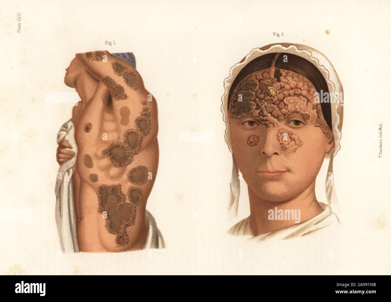 Syphilitic tubercules on the torso and arms 1, and suppurating tubercular syphilide on the face.Chromolithograph by T. Sinclaire from Freeman J. Bumstead's Atlas of Venereal Diseases, Henry C. Lea, Philadelphia, 1868. First American edition of Auguste Cullerier's Precis iconographique des maladies veneriennes. Stock Photo