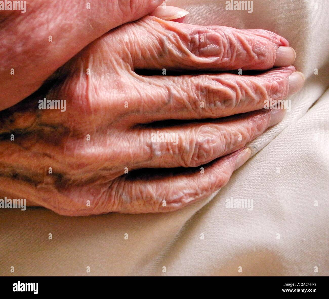 AJAXNETPHOTO. GOSPORT, ENGLAND. - HAND OF OLD AGE - WRINKLED SKIN ON THE HAND OF OLD AGE. ELDERLY PERSON IN CARE HOME.PHOTO:JONATHAN EASTLAND/AJAX REF:GR2 111006 12785 Stock Photo