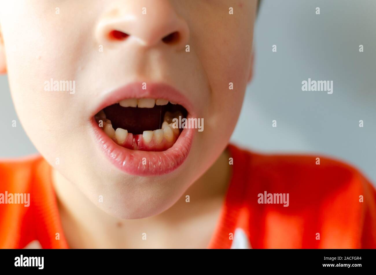 Tooth Hole High Resolution Stock Photography And Images Alamy