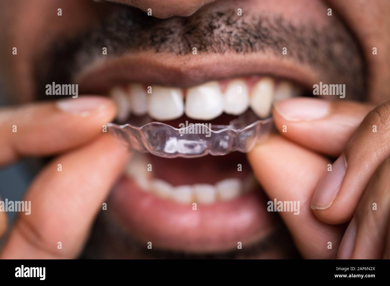 Close-up Of A Man's Hand Putting Transparent Aligner In Teeth Stock Photo