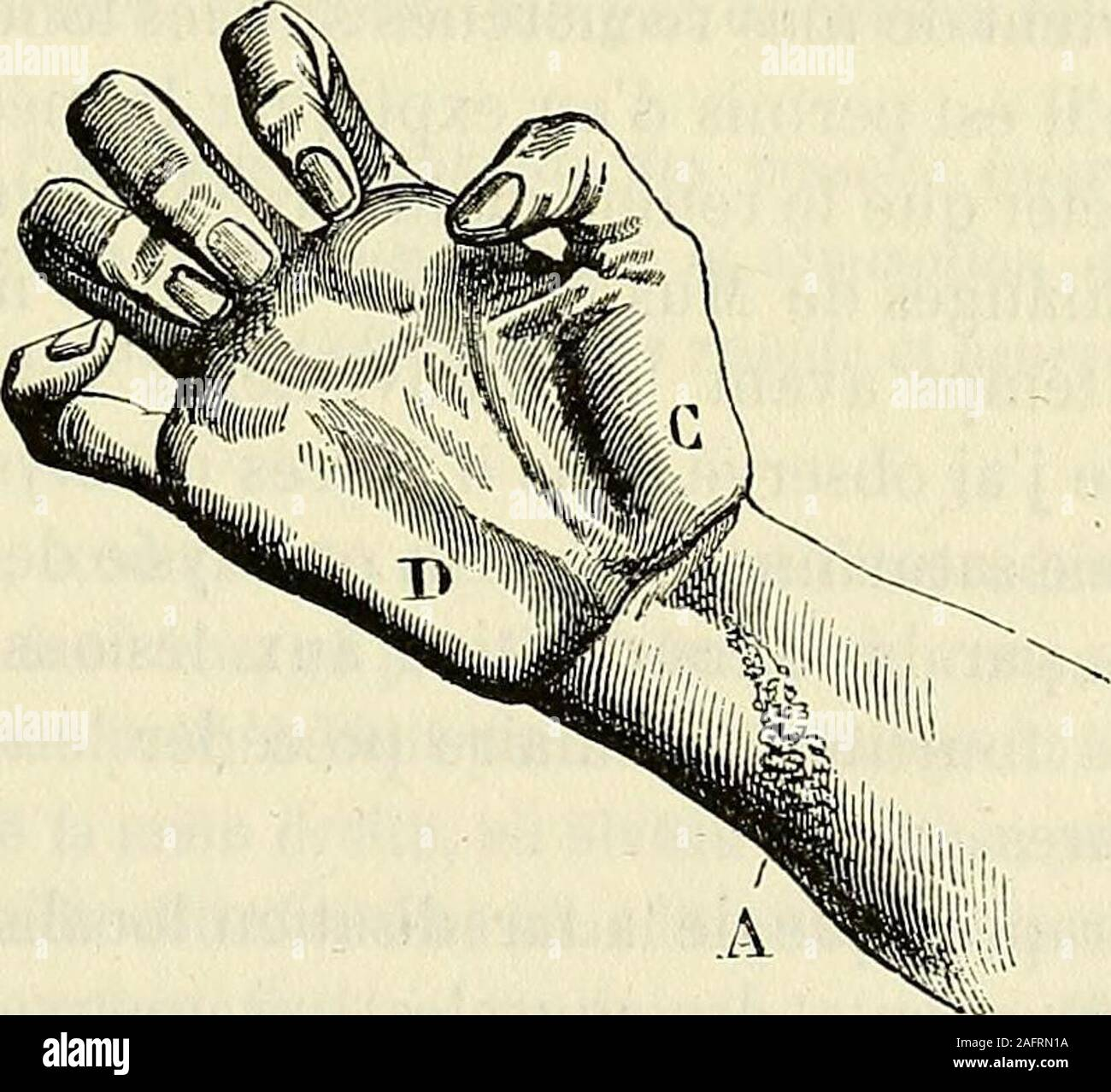 . De l'électrisation localisée et de son application a la pathologie et a la thérapeutique. FiG. 36. — Attitude de la main de Musset tenant une plume pourécriref après le trailement. rapide, que Musset put, au mois daoût, écrire et dessiner, et bien quil eûtinterrompu son traitement pendant plusieurs mois et à plusieurs reprises,les premières phalanges de lindex et du médius se fléchirent à angle droitsur les métacarpiens ; les deux dernières sétendirent complètement ; quantà lattitude et aux mouvements volontaires des deux derniers doigts, ilsfurent aussi en voie damélioration, et il nest pas Stock Photo