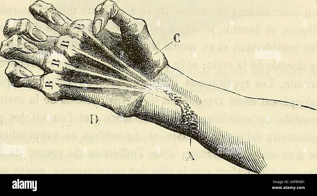 . De l'électrisation localisée et de son application a la pathologie et a la thérapeutique. Fig. 34. Attitude vicieuse de la main de Musset vue jiar sa face dorsale, avant le IraUe-mçnl.—La lésion du nerf cubital a été suivie de latrophie des interosseux et desdeux derniers lombricaux. —Les muscles de lavant-bras jouissant de leurs pro-priétés et se trouvant privés de leurs modérateurs, les phalanges ont été entrai- EXPOSITION DES FAITS. — PARALYSIES ANCIENNES. 203 nées dans des directions vicieuses, et la main a pris la forme dune grille. —La dépression A indique lorigine de la cicatrice occa Stock Photo