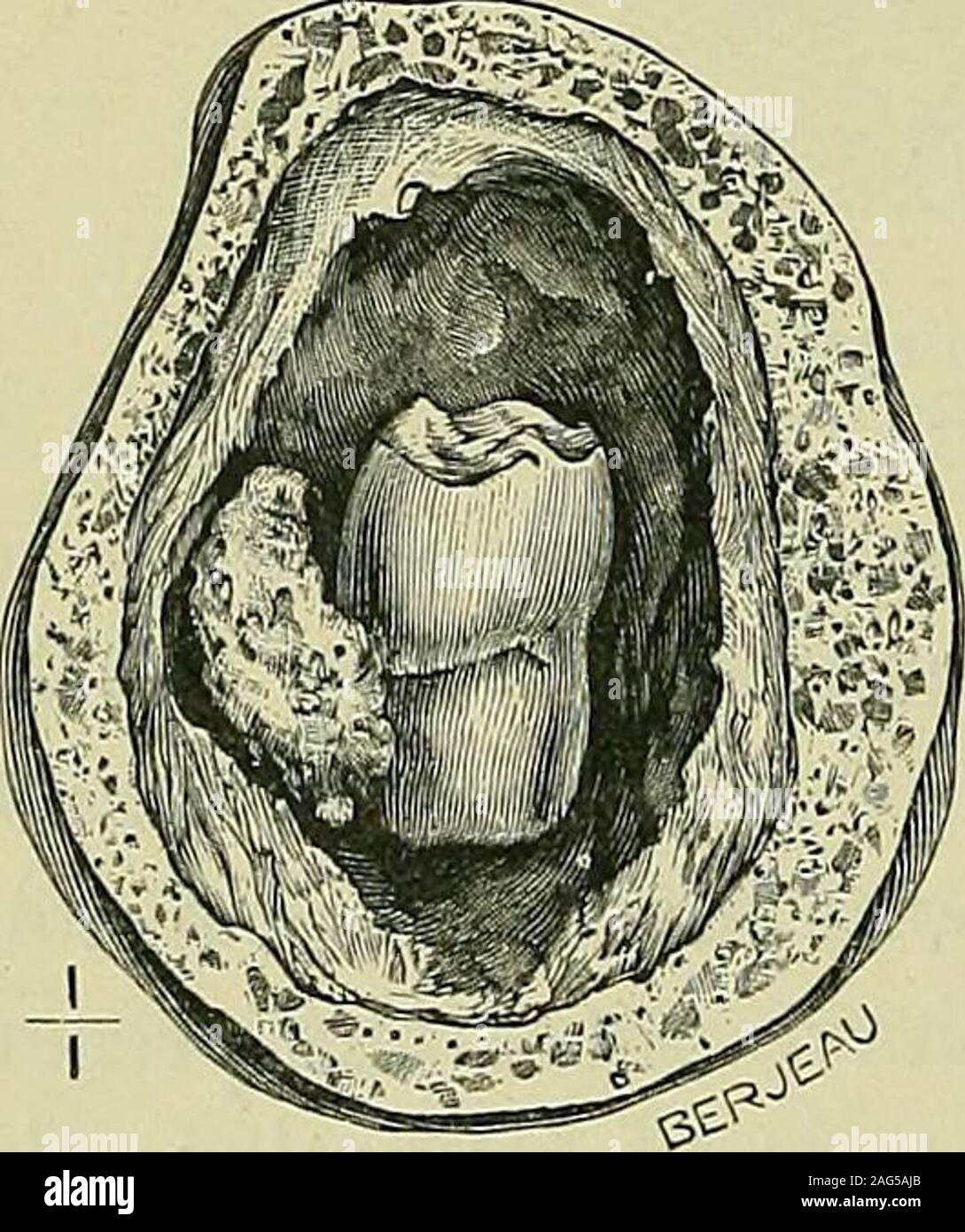 . Tumours, innocent and malignant; their clinical characters and appropriate treatment. Fig. 115.—Follicular odontomas from the mandible. in the museum of the Royal College of Surgeons, is a goodexample of this condition.) Hopewell Smith found that a tooth from a follicularodontome had no Nasmyths membrane, and suggests thatthe fluid within these tumours is probably formed from thedegeneration and liquefaction of the stellate reticulum.. Fig. 116.—Follicular odon-tome from the right halfof a mandible, removedfrom a boy aged 14years, by Wormald, 1850.{Museum of the Royal Col-lege of Surgeons.) Stock Photo