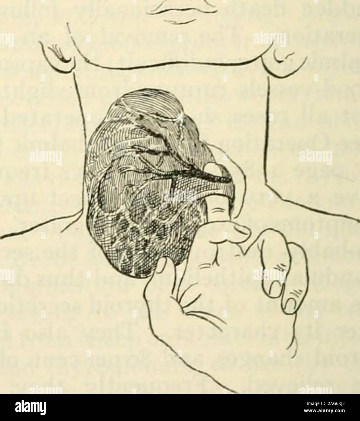 . Modern surgery, general and operative. Fig. 889.—Kochers transverse incision Fig. 890.—Isolating the accessory veinsexposing the muscles and median veins of (Kocher). the neck (Kocher). growth is glandular tissue. The operation of enucleation is not suited to theremoval of multiple tumors and it cannot be performed for parenchymatousgoiter or exophthalmic goiter. Intraglandular enucleation is performed asfollows: The thyroid is exposed by an oblique or by a transverse incision. Anincision is made through the capsule of the thyroid gland and through the gland-ular tissue until the cyst or soh Stock Photo