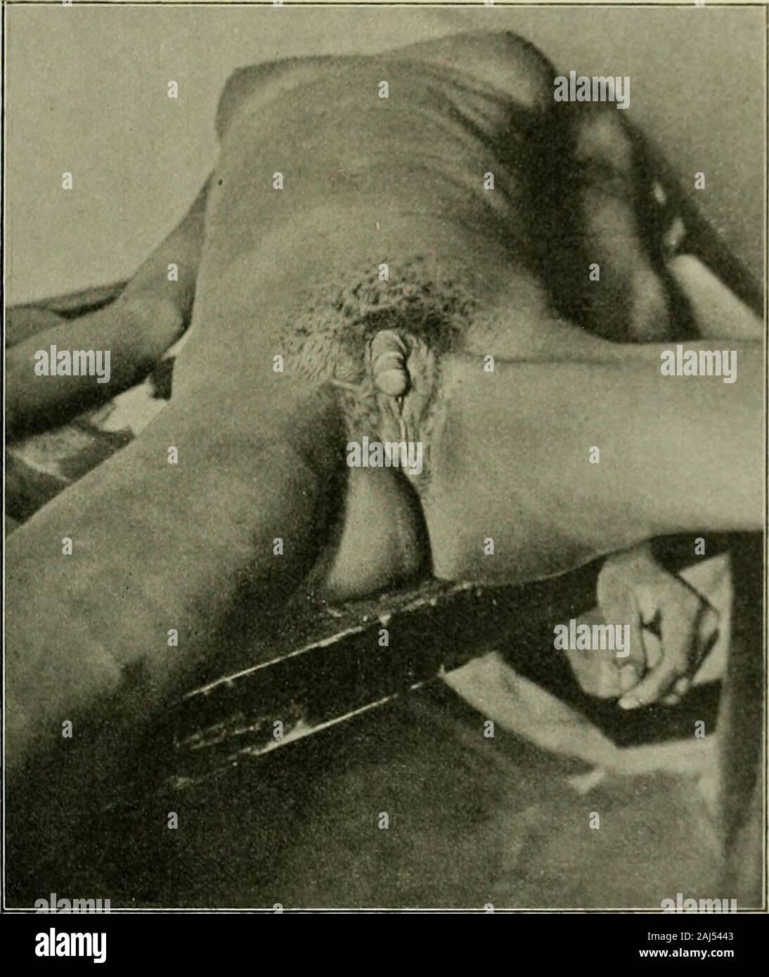 Weibliche Scham Schamhaare Und Intimfrisuren