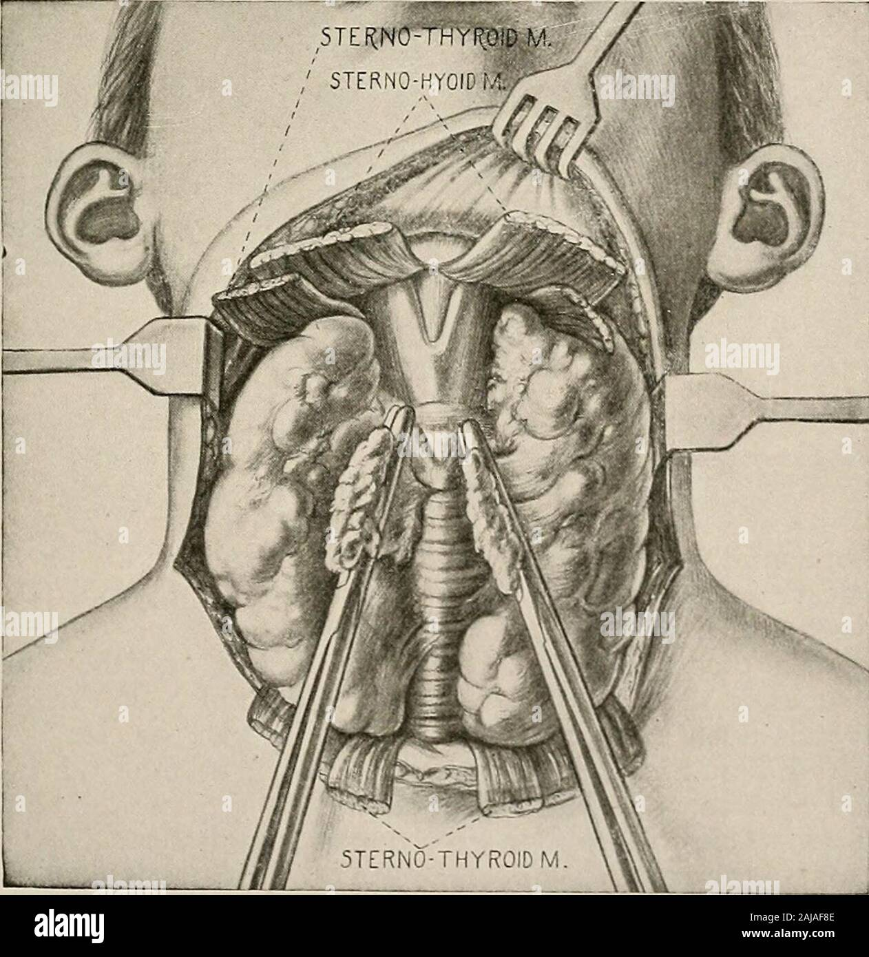 Surgical treatment; a practical treatise on the therapy of surgical diseases for the use of practitioners and students of surgery . Fig. 1083.—Operation for Double Goiter.Goiter exposed by transverse incision. Isthmus clamped and divided. 388 SURGICAL TREATMENT ning suture is carried along the edge of the wound (Fig. 1084). The sameoperation is done in the other lobe. The amount of gland tissue to be leftin the two lobes must be determined by the judgment of the surgeon. Itshould be planned that the patient shall be left an amount of thyroid tissuecapable of satisfying the physiologic needs. T Stock Photo