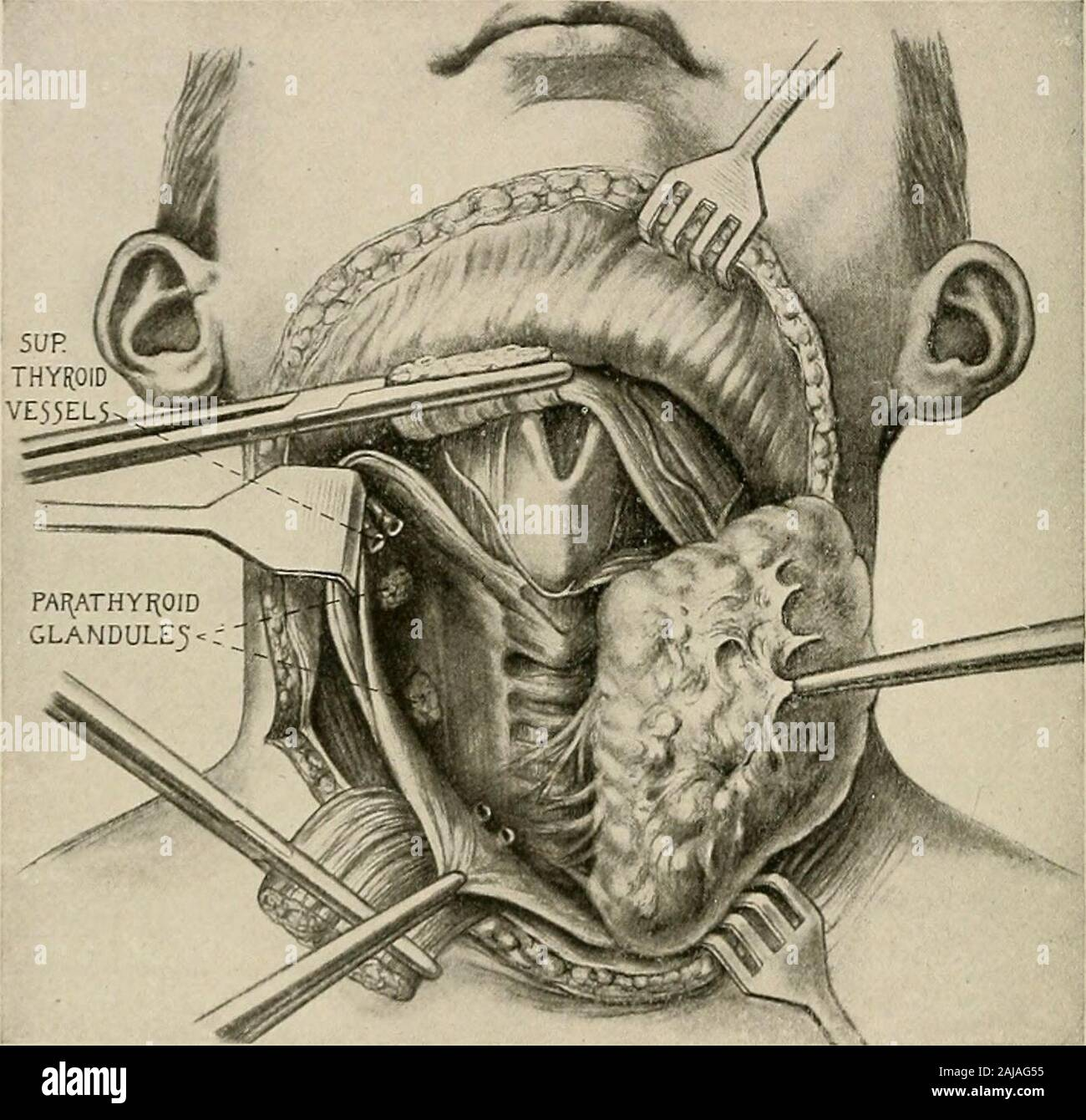 Surgical treatment; a practical treatise on the therapy of surgical diseases for the use of practitioners and students of surgery . umatized, its blood supply should not be harmed, and the raw surfaceleft after the enucleation should be covered with fascia to protect it. The doable resection of nontoxic goiter, which is called for because of the VOL. II—25 386 SURGICAL TREATMENT mechanical inconvenience of the swelling, is an operation which should haveno mortality. The tumor is best exposed by the horizontal incision extend-ing from one external jugular vein to the other. The upper flap is di Stock Photo