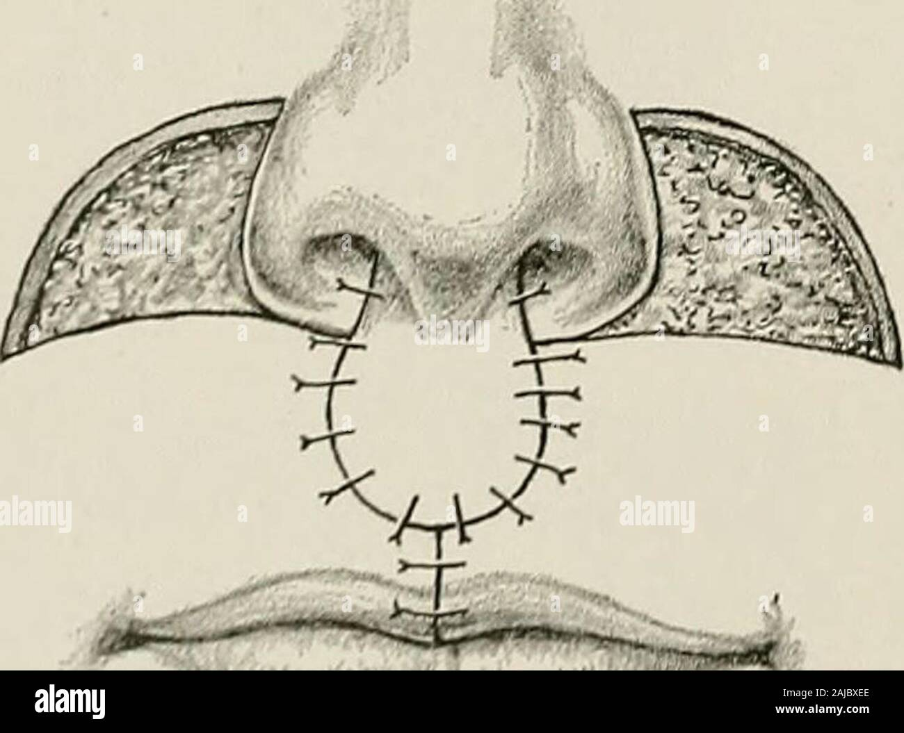 Surgical treatment; a practical treatise on the therapy of surgical diseases for the use of practitioners and students of surgery . Fig. 968. — Operation forDouble Harelip with Cheek Flaps.Lines of Incision. First Stage.. Stock Photo