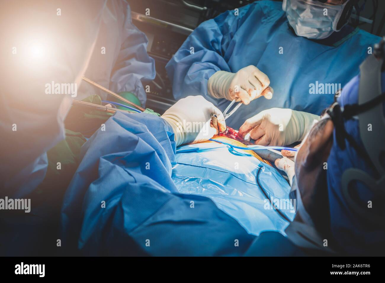 Close up group of surgeons in Surgery operating room. Medical team of surgeons doing surgery in hospital operating. Stock Photo