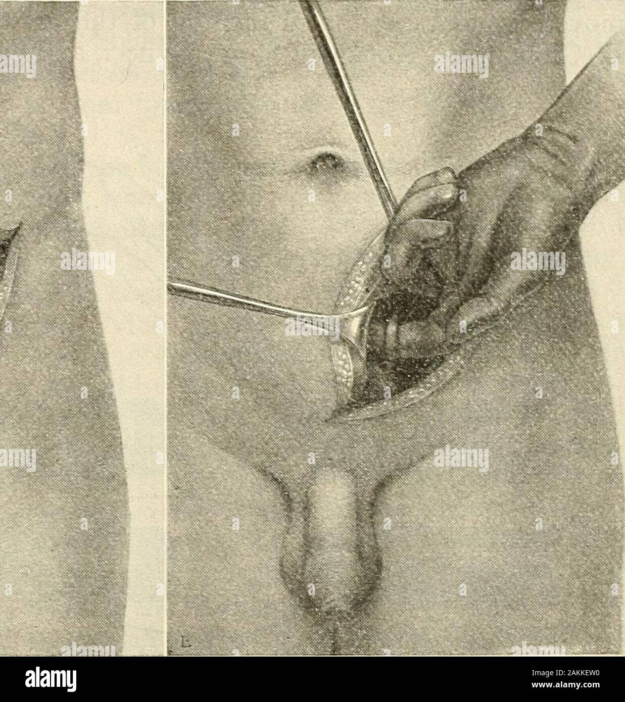 Modern surgery, general and operative . Fig. 861.—Gibsons indsion for operations onthe lower ureter. The edge of the rectus muscleis strongly retracted inward; between it and thecut edge of the transversalis fascia the peritoneumis exposed (C. L. Gibson). Fig. S62.—Gibsons incision for operationson the lower ureter. The peritoneum has beenpushed upward. The ureter is hfted out of thepelvis and brought to the level of the externalwound (C. L. Gibson). turbed at all. With efi&cient retraction of the upper flap the external borderof the rectus muscle is identified (Fig. S60) and the fascia of the Stock Photo