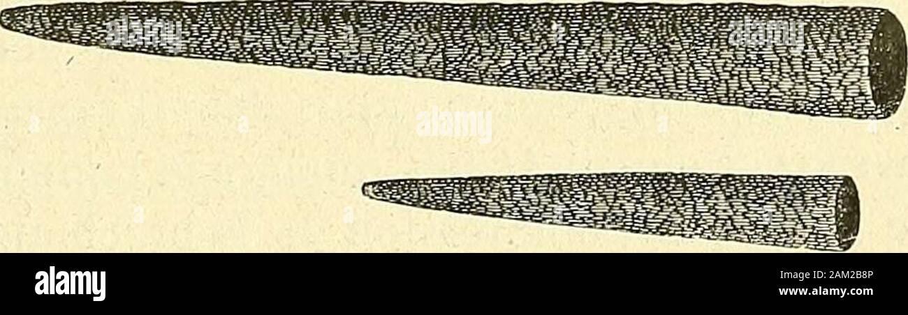 Chirurgie journalière des hopitaux de Paris : répertoire de thérapeutique chirurgicale . Fig. 451. — Cône dépongé préparée avec ou sans mandrin. et lextraction du calcul en une seule séance paraissent être, pourM. A. Després, le meilleur procédé à suivre.. Fig. 452. — Cône déponge de Marion Sims. Pour faire cette extraction, M. A. Després se sert, soit de la pinceà anneaux (modèle Gharrière) ordinaire (fig. 453), soit dune Ion- 522 HOPITAL COCIIIN. — LE DOCTEUR A.RM. DESPRÉS. gue pince à mors largement fenêtres analogue à celle de S. Grossfig. 454). Stock Photo