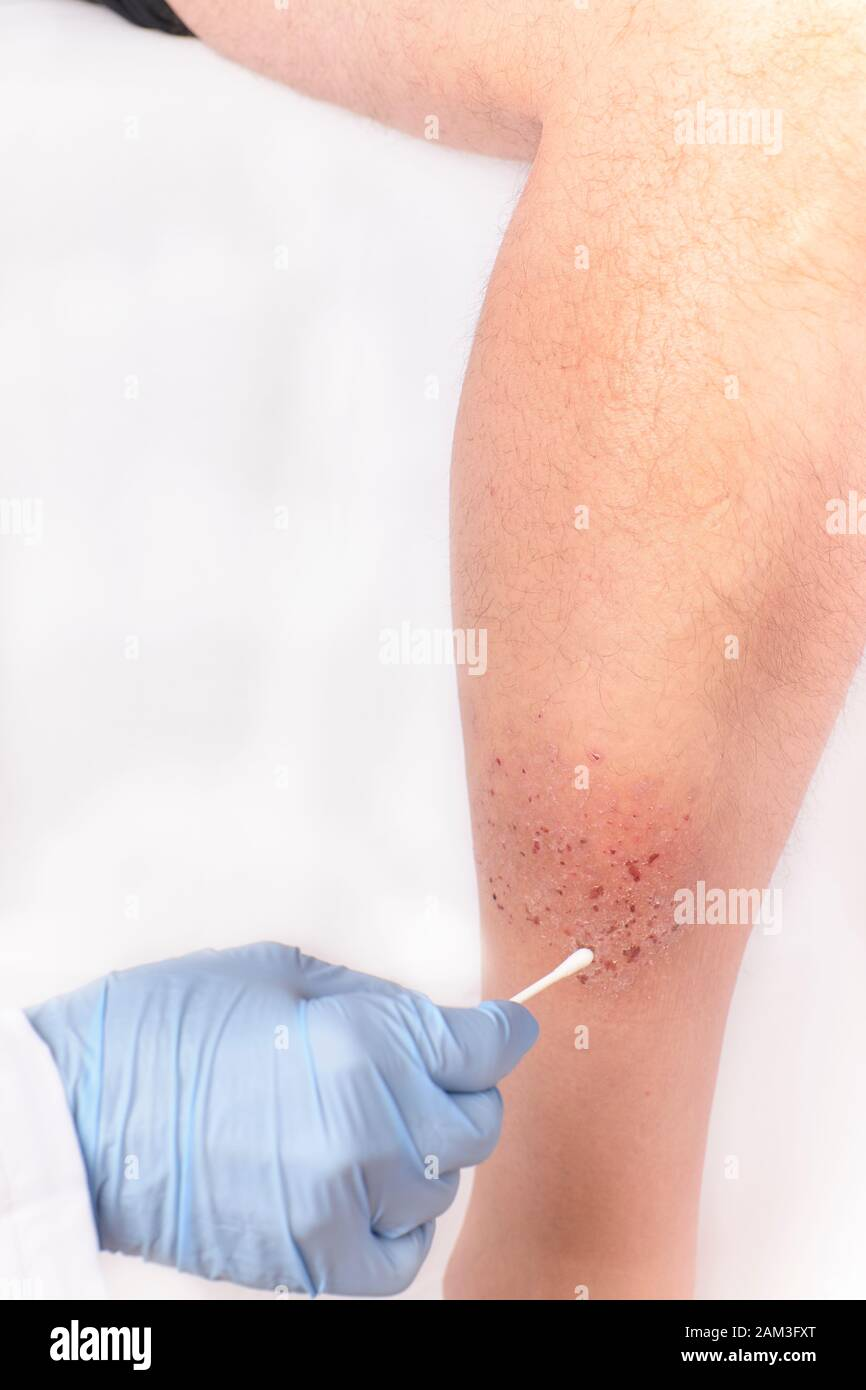 nurse's hands healing a painful eczema on a patient's leg. Concept of medicine and health Stock Photo