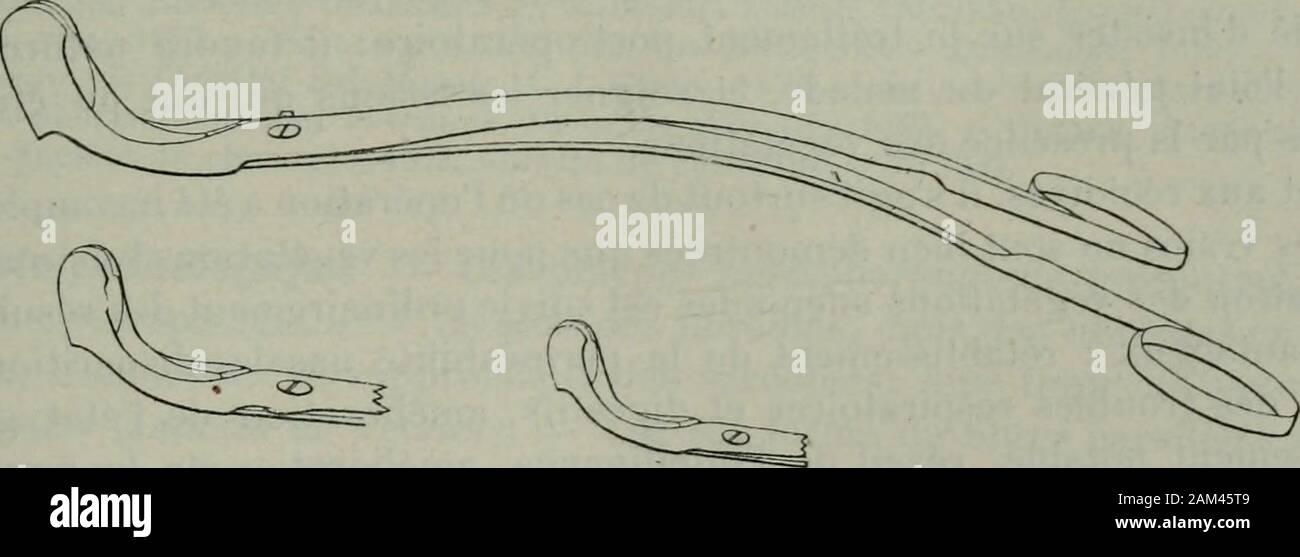 Traité de chirurgie . D.SIMALFiG. 32:5. — Curette de Trautmann. Uablalion à la pince coupante (fig. 527) est dune exécution très simple : lapince est introduite fermée jusquen arrière du voile, puis on ouvre les mors delinstrument en le portant aussi haut que possible ; on ferme alors les mors enrapprochant les branches, et la portion de tissu saisie est détachée par un mou-. FiG. 327. — Pince de Cliatellicr pour ablation des végétations adénoïdes. vement de torsion. Actuellement cette méthode nest guère conservée que pourle nourrisson et chez ladulte, lorsquil sagit de détacher une végétation Stock Photo