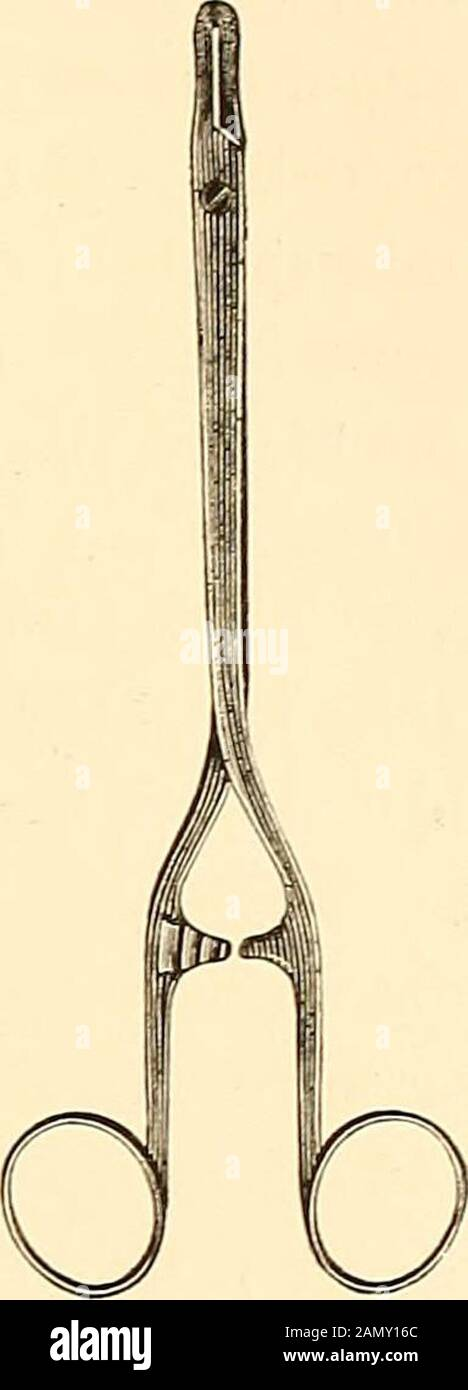Text book of abdominal surgery : a clinical manual for practitioners and students . to raise the opposite side, and thus enlarge thespace through which the incision is to be made by causing alateral curvature of the spinal column. Before commencing theincision, the last rib is to be found, and it must be remembered,that the twelfth rib may vary in length on the two sides. It isof importance to be perfectly certain that the twelfth rib hasbeen found, because if a mistake were made and the eleventhtaken as the guide, the pleura which is attached to this ribmight easily be opened, should it be fo Stock Photo