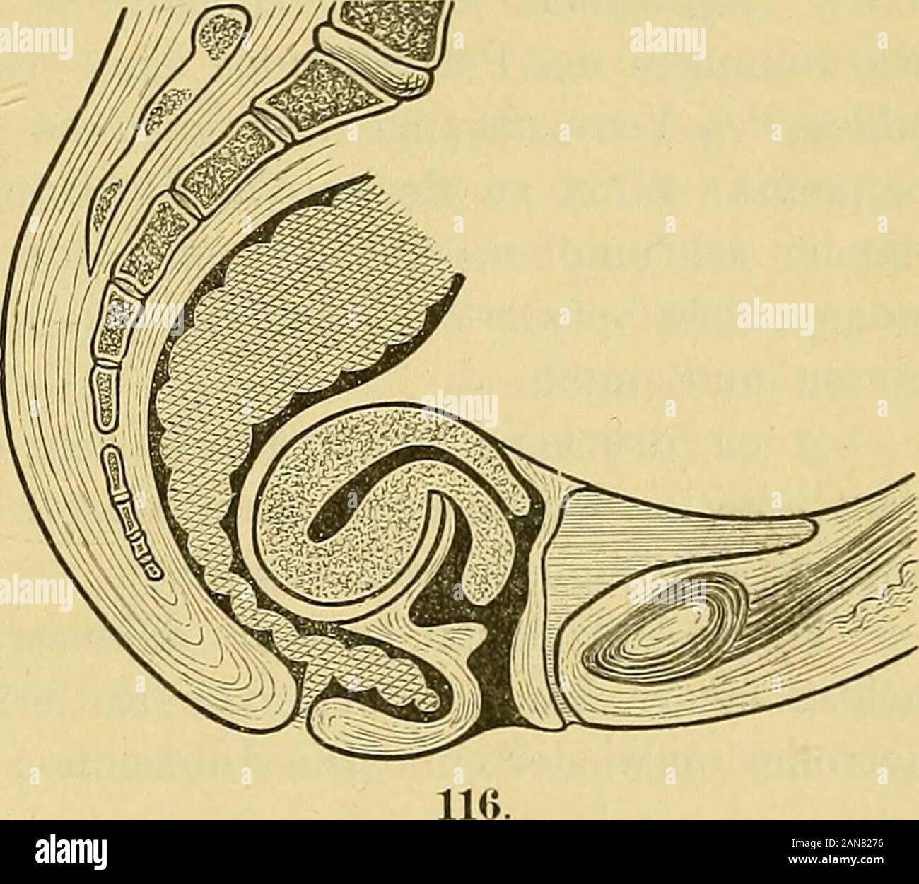 Gebärmutter nach hinten gekippt welche stellung