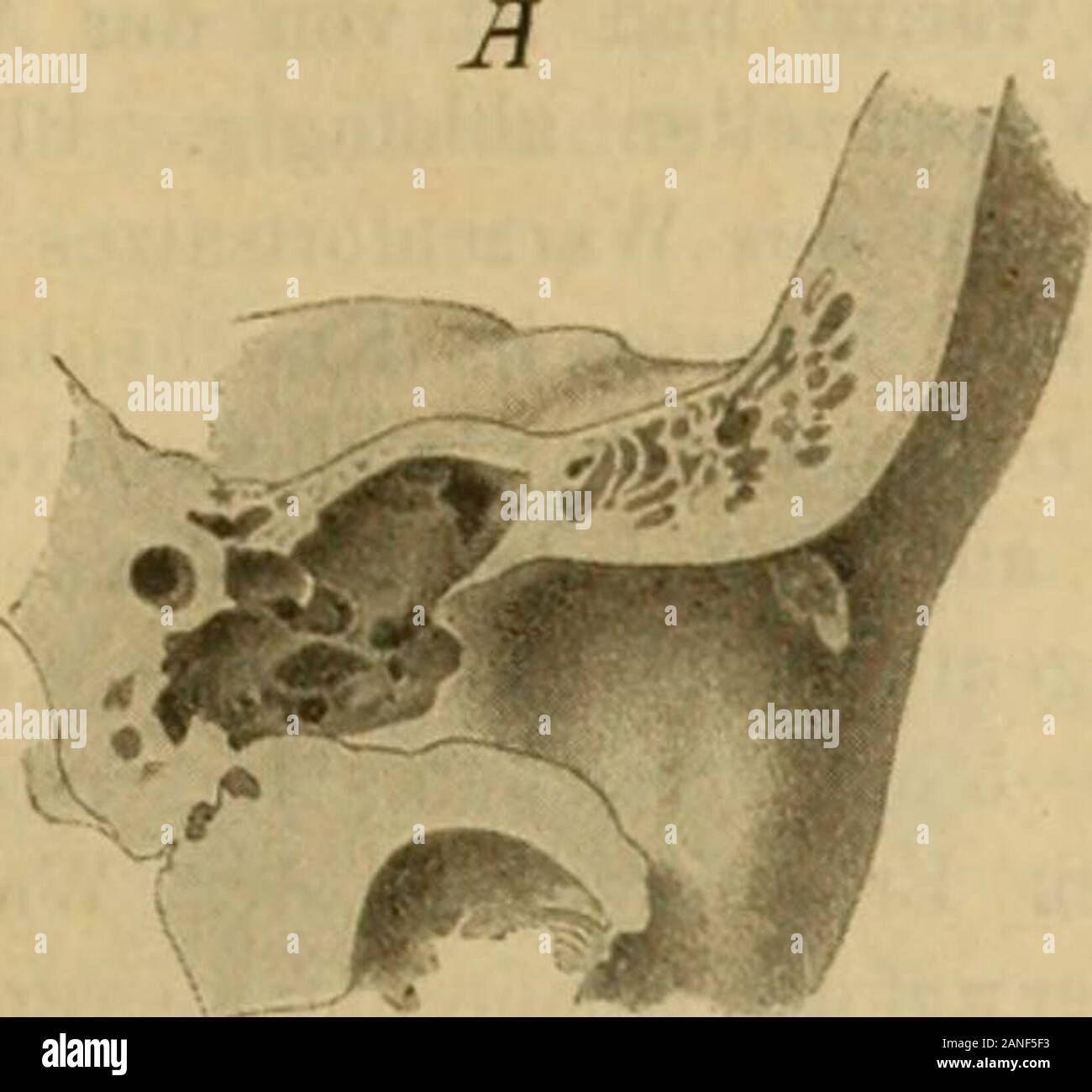 Handbuch der Ohrenheilkunde . tsatz beigestellt. Die obere Wand gehört dem horizontalen Theile der Schläfebein-schuppe an und trennt die Gehörgangslichtung von der mittleren Schädel-grube. Sie besteht aus zwei compacten Platten, einer oberen, der Schädel-höhle, und einer unteren, dem Gehörgang zugewendeten, zwischen welchensich als dritte Schichte pneumatische oder diploehaltige Spongiosa ein-schiebt. Die cerebrale Platte ist papierblattdünn, lang, aber schmal, zwischenSchläfebeinschuppe und Tegmen tympani eingeschoben und von diesemtheilweise schuppenartig überlagert, während die dickere unte Stock Photo