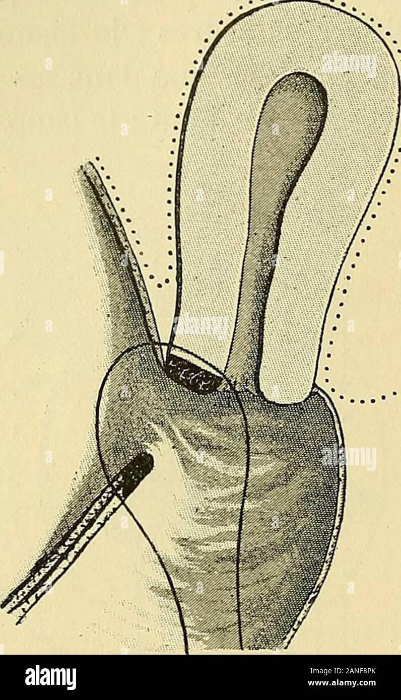 Traite De Gynecologie Clinique Et Operatoire Rectalede La Vulve 1 Ineugedauer Cenlr F Gijii 1885 N
