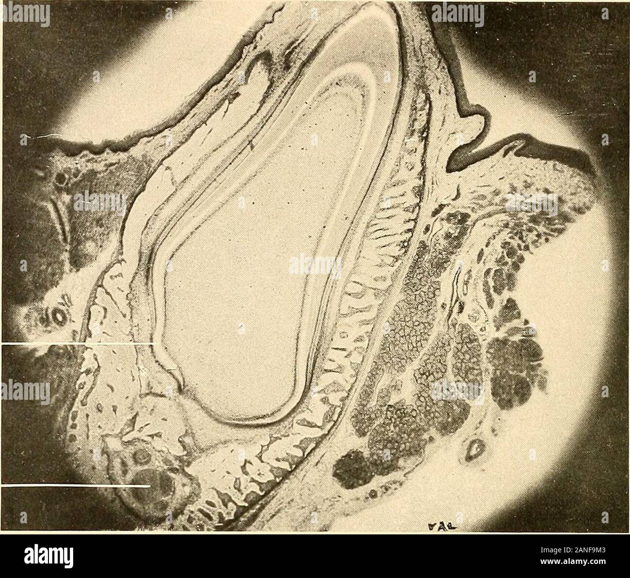 Principles and practice of operative dentistry . ^ -:tr f/. wm 7 1 wi Uc /? n v? ^ Fig. 196.—Longitudinal section of root of tooth in situ, showing relation of the tissues and Sharpeysfibres in the alveolar process. (F. B. Noyes.) 2), dentin ; N, Nasmyths membrane ; C, C, cementum ; F,fibres supporting gingivus ; F1, fibres joining the outer layer of periosteum over the alveolar process(Sharpeys fibres) ; F-, fibres running from cementum to bone ; B, bone or alveolar process. 1 Turning under ofthe base of theenamel-organ. Fig. 197.—Vertical section of a dental follicle, showing the blood-vesse Stock Photo