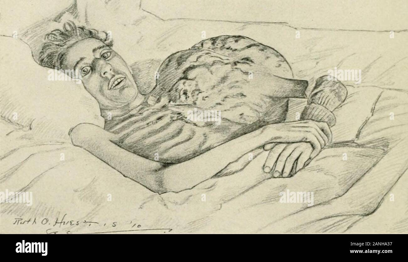 Melanotic High Resolution Stock Photography And Images Alamy