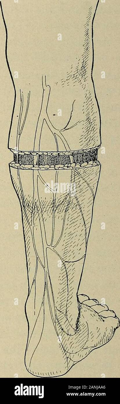 Operative surgery, for students and practitioners . Fig. 338.—Operation for Varicose Veins.Incision exposes the external saphenousand its tributaries. Fig. 337.—Operation for Varicose Veins,where the internal saphenous and itstributaries are affected. Incision aboveknee through which the internal saphe-nous is exposed and ligated. Circular in-cision around the leg to expose and ligateall the affected veins. little by little, exposing and ligating the veins as they are met with.The incision is first made only part way around the leg and thevessels which are exposed in this part of the incision Stock Photo