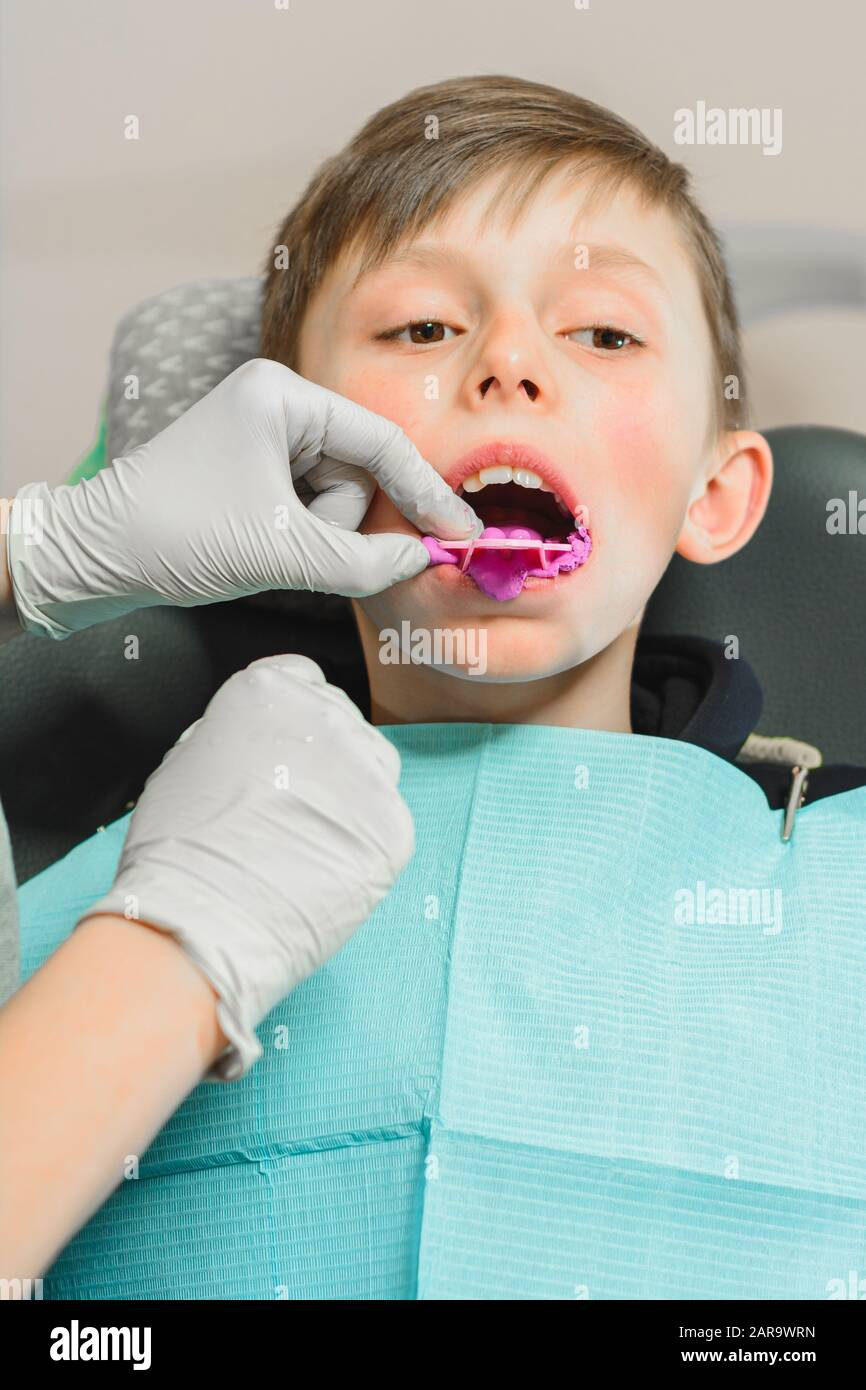 Boy in dentist chair with dental impression tray in her mouth Stock Photo
