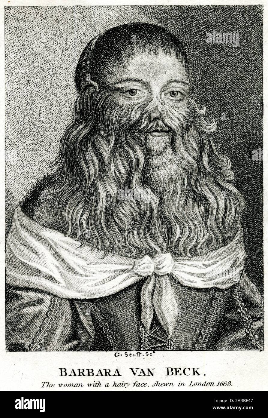 Barbara Urslerin (1629 - 1668+), a bearded woman from Germany.     Date: 1668 Stock Photo