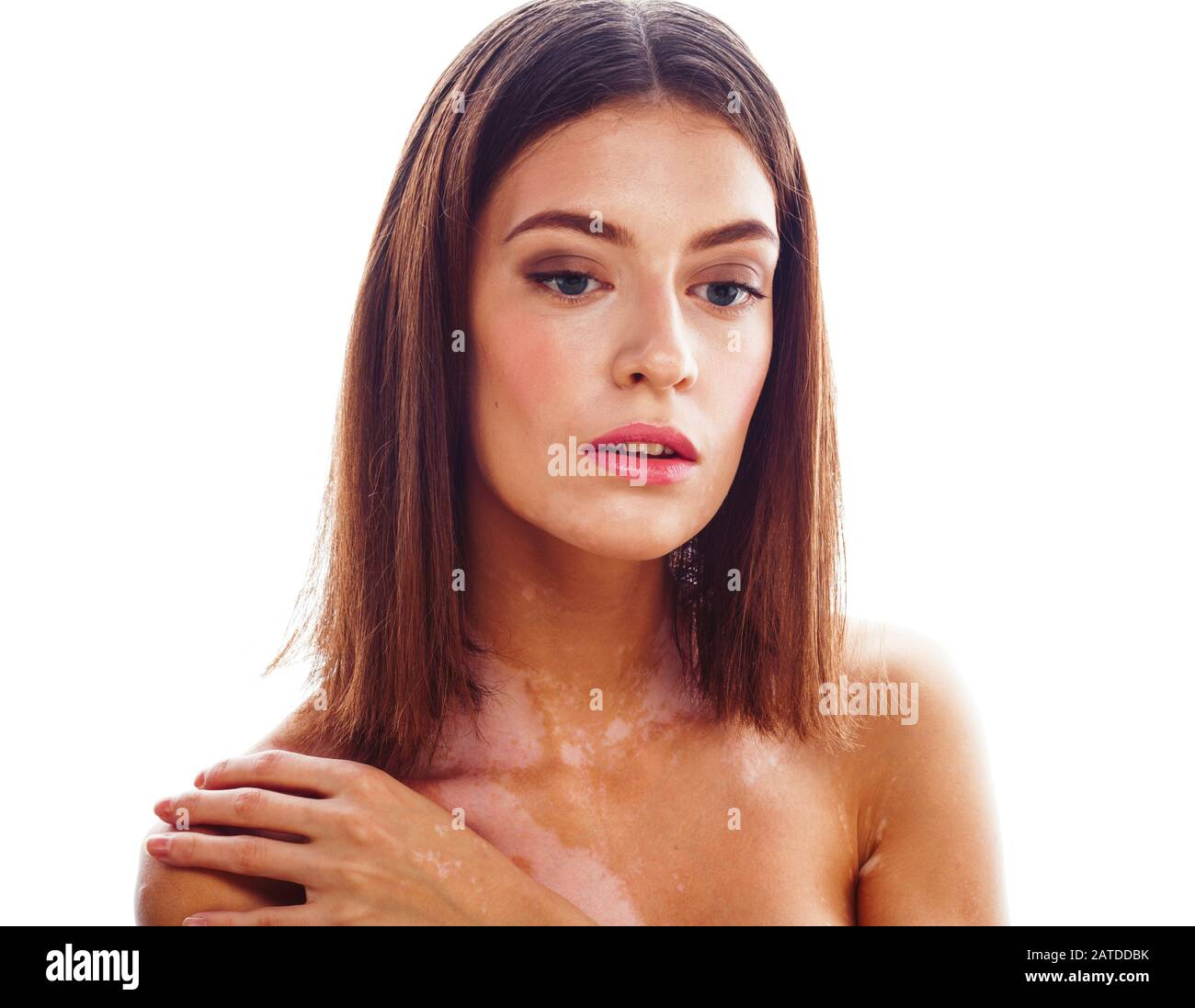 Beautiful Young Brunette Woman With Vitiligo Disease Close Up Isolated On White Positive Smiling Model Problems Concept Bad Tan Real Problem Stock Photo Alamy