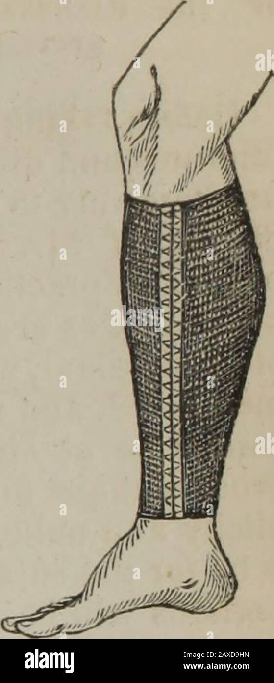 Minor surgery, or, Hints on the every-day duties of the surgeon . MINOR SURGERY. 121 THE ELASTIC LACED STOCKING FOR VARICES, Fig. 99. Is employed for the com-pression of varicose veins, andalso for the support of tenderand extensive cicatrices of theleg, being occasionally pre-ferable to the ordinary-rolledbandage, as it accommodatesitself perfectly to the form ofthe limb, exerts an equal com-pression throughout its wholeextent, is not liable to becomederanged, and may be readily-worn under a boot. Where itcannot be obtained ready made,slit a common strong cottonstocking down the side, andhem Stock Photo