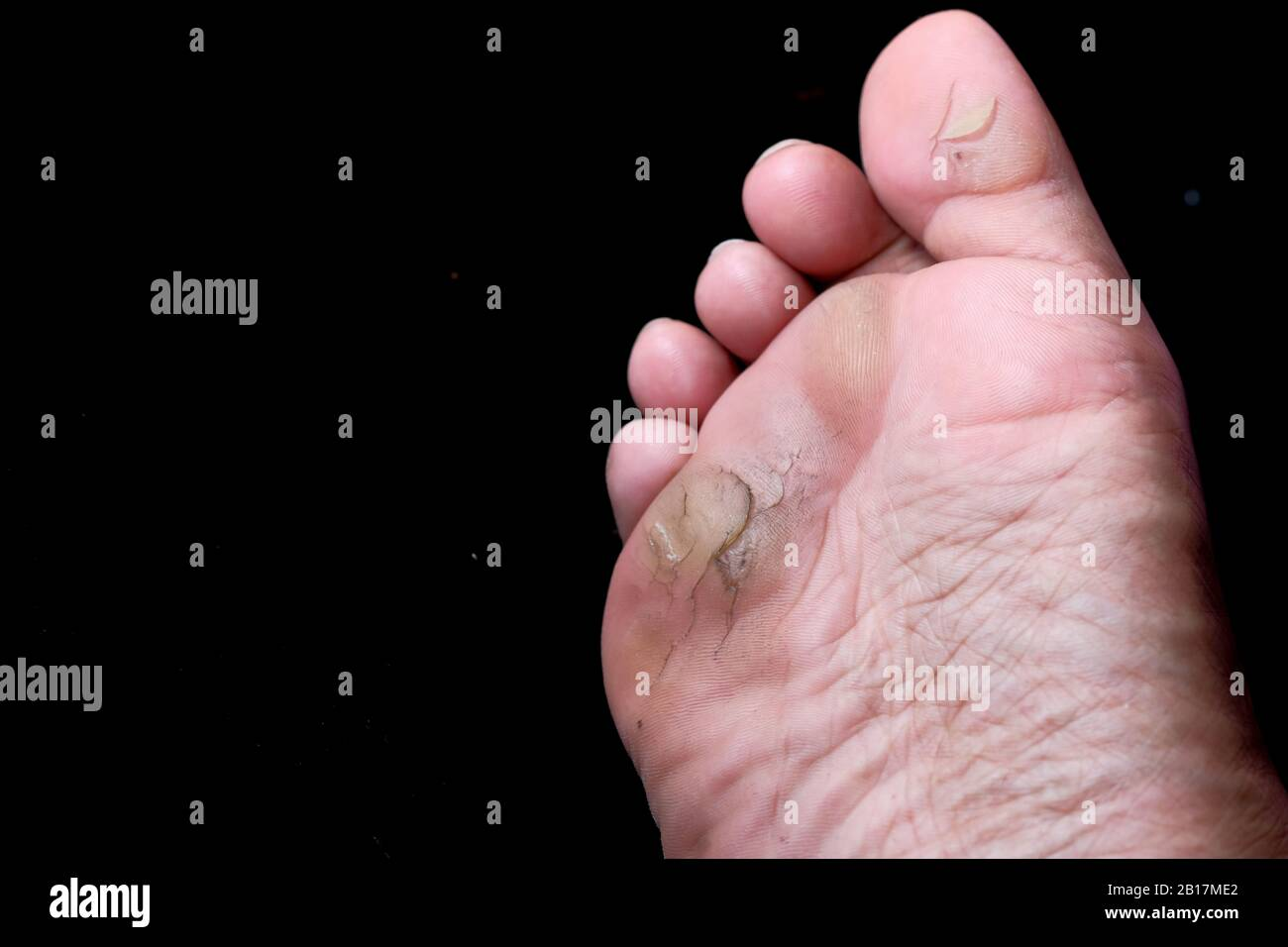 Foot Fungus High Resolution Stock Photography And Images Alamy