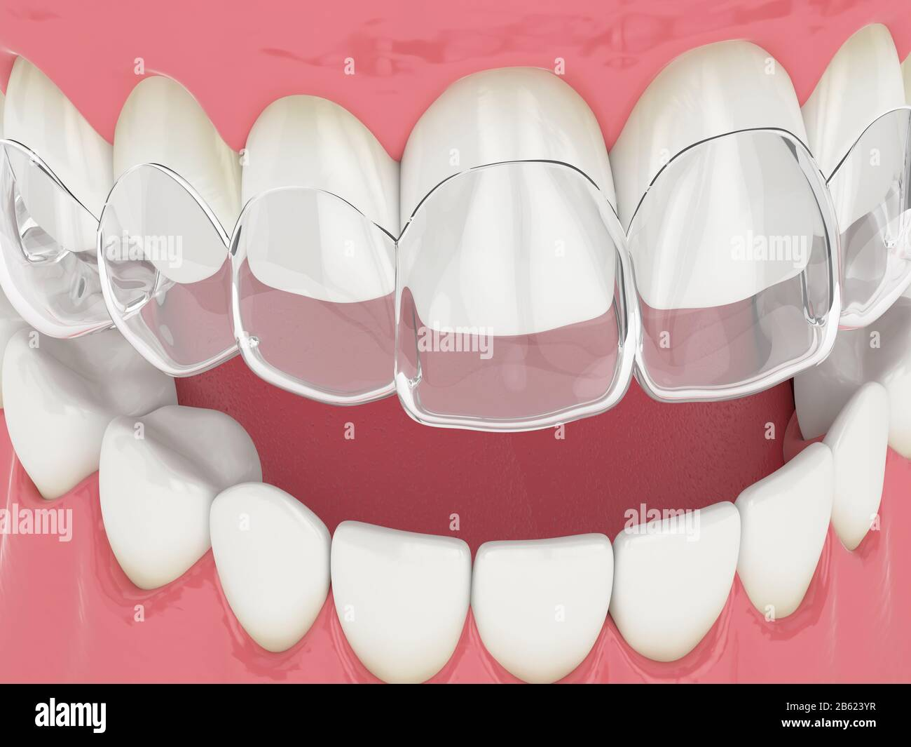 3d render of upper jaw with invisalign removable retainer Stock Photo