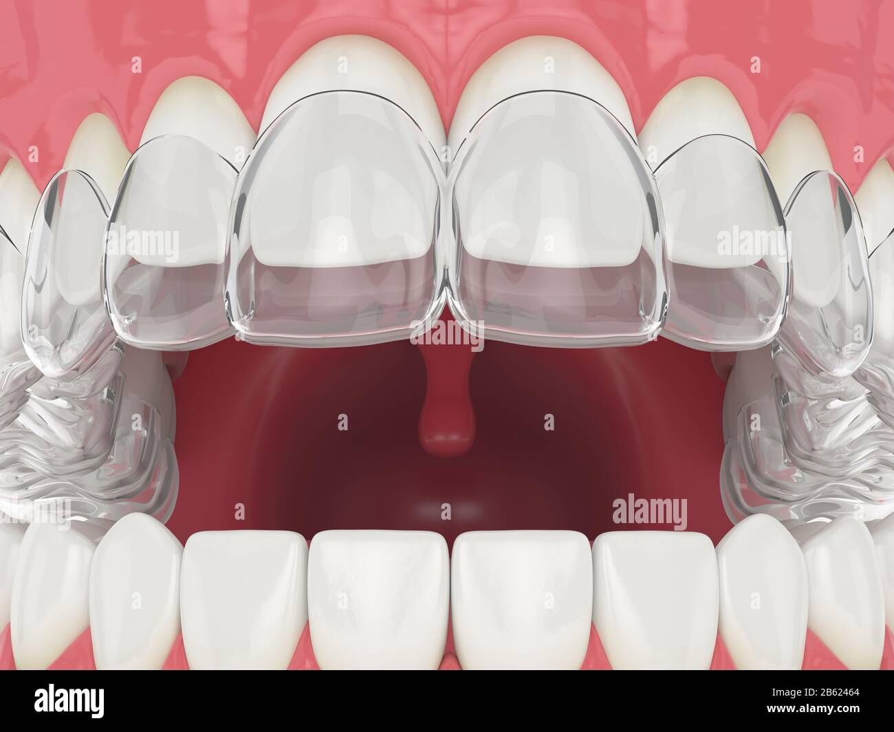 3d render of jaw with upper invisalign removable retainer Stock Photo