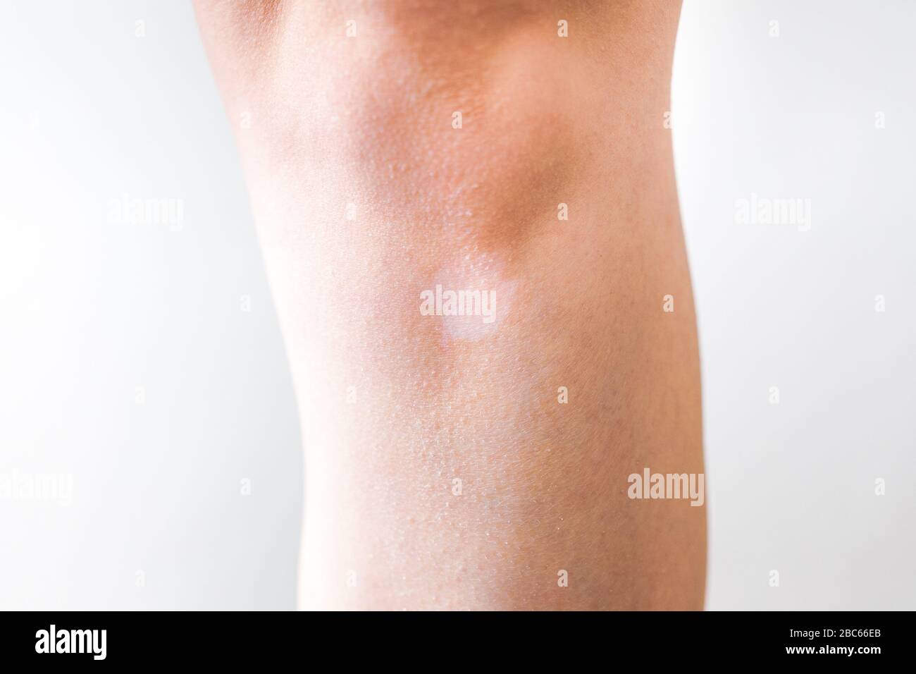 White Vitiligo Spot On The Skin Lack Of Melanin Stock Photo Alamy
