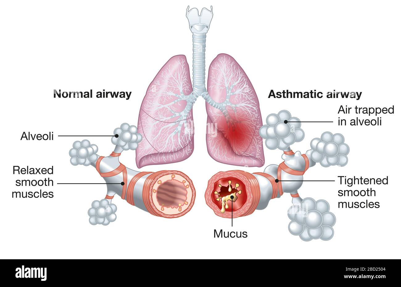 Diagram showing Asthma, normal and asthmatic airways, medically  illustration Stock Photo - AlamyAlamy