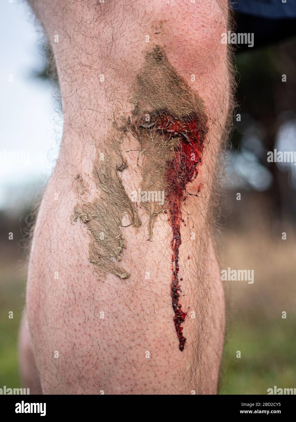 A runner's knee with a fresh bleeding wound after a running accident; blood trickles down the man's shin from a bloody knee. Stock Photo