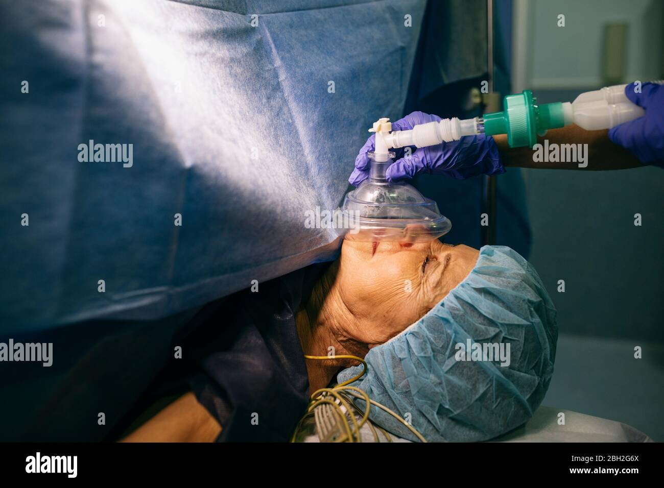 Anesthetist applying anesthesia machine to patient in operating room Stock Photo
