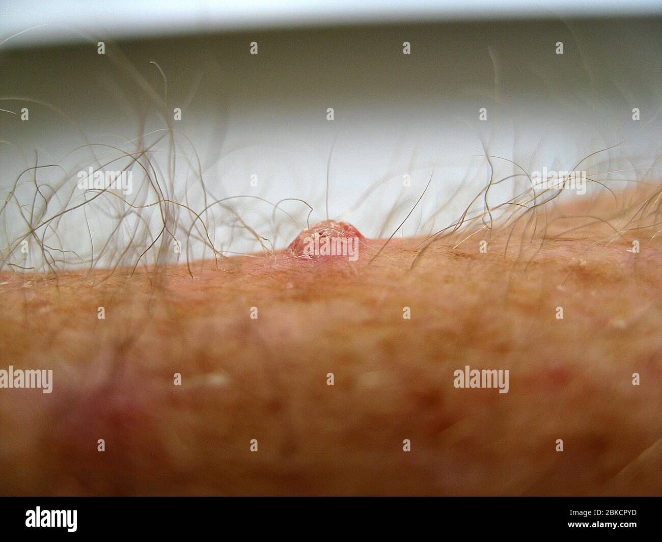 Skin Cancer Is Evident In This Side View Of A Squamous Cell Carcinoma On The Hairy Arm Of A Caucasian Man Most Often Caused By Years Of Exposure To The Sun S Ultraviolet