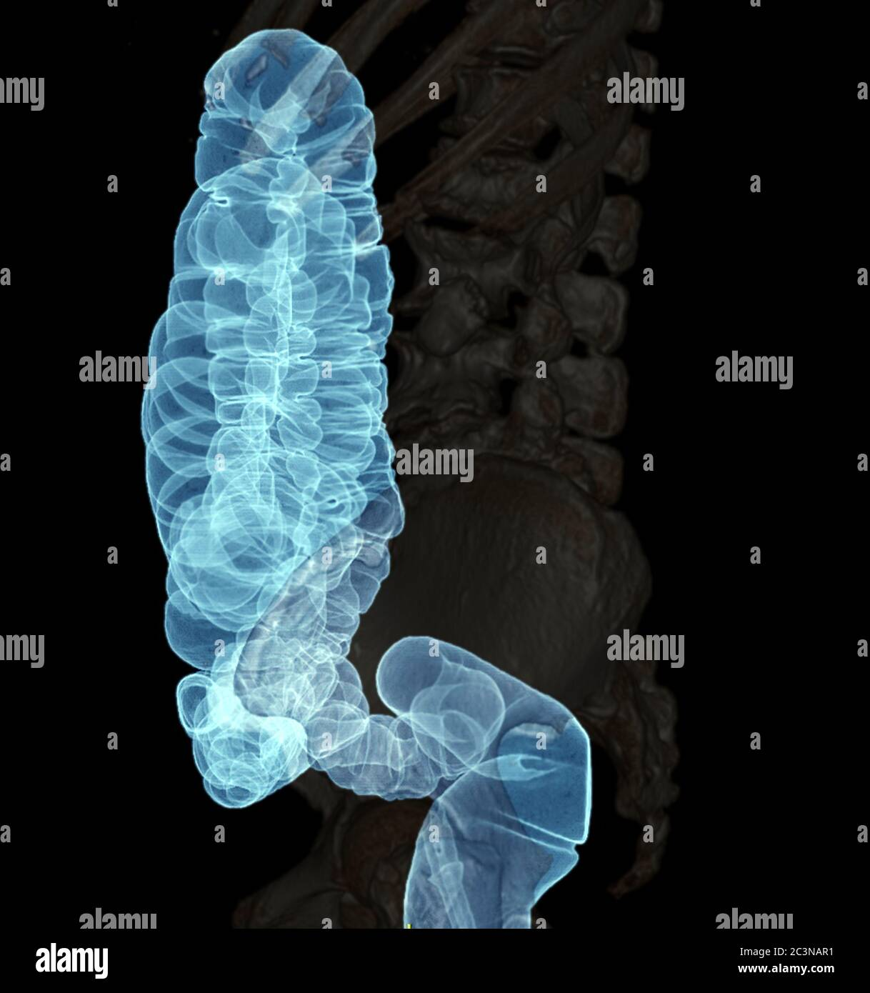 Ct Colonography Or Ct Scan Of Colon 3d Rendering Image Lateral View Showing Colon For Screening Colorectal Cancer Check Up Screening Colon Cancer Stock Photo Alamy