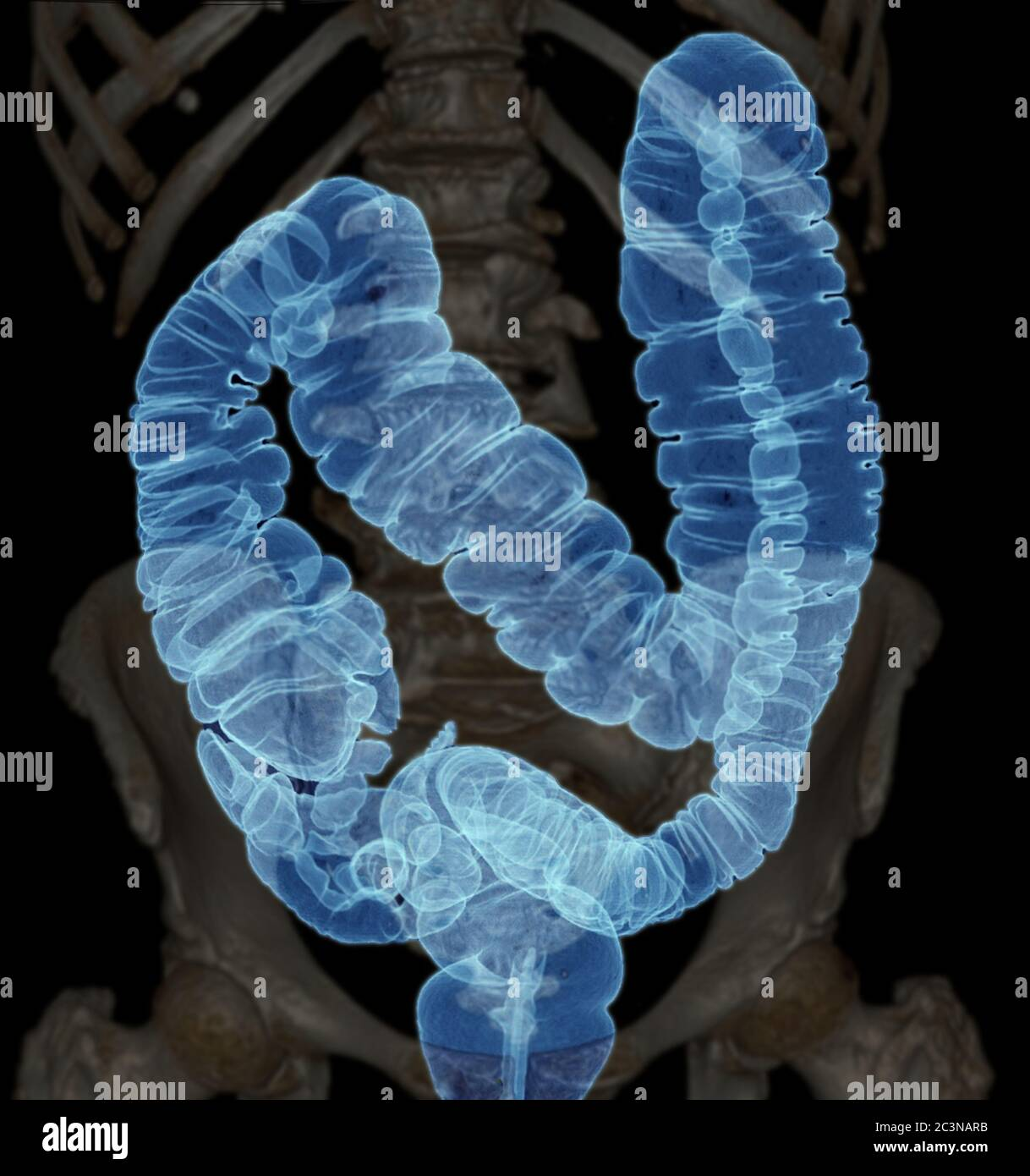 Ct Colonography Or Ct Scan Of Colon 3d Rendering Image Ap View Showing Colon For Screening Colorectal Cancer Check Up Screening Colon Cancer Stock Photo Alamy