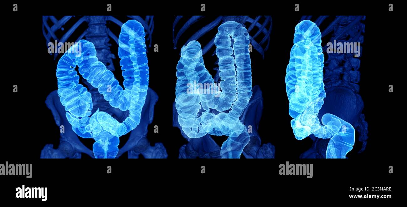 Colorectal Cancer High Resolution Stock Photography And Images Alamy
