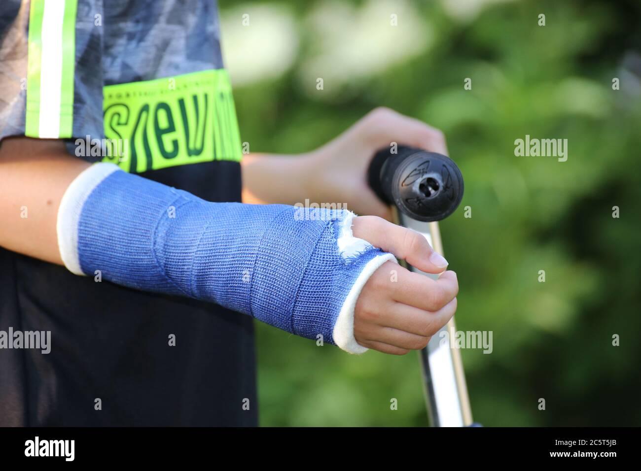 Nahaufnahme von einem Jungen mit Gipsarm (Model released) Stock Photo