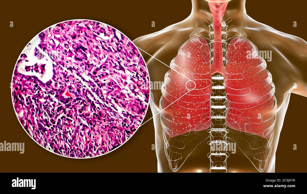 Miliary tuberculosis, computer illustration and light micrograph. Miliary tuberculosis is a result of hematogenous dissemination of Mycobacterium tube Stock Photo