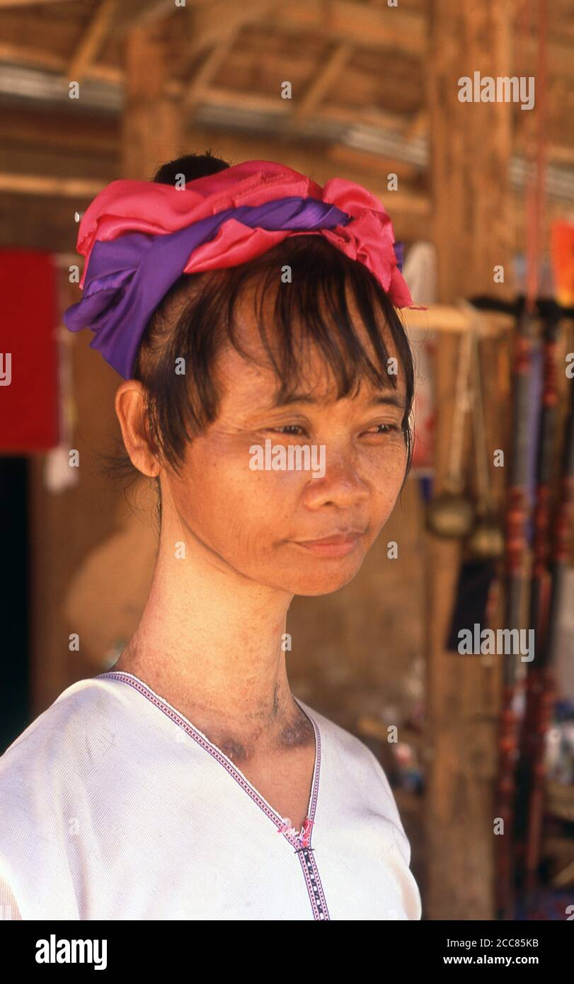 Thailand: A Padaung (Long Neck Karen) woman after removing her neck rings for cleaning, village near Mae Hong Son. The Padaung or Kayan Lahwi or Long Necked Karen are a subgroup of the Kayan, a mix of Lawi, Kayan and several other tribes. Kayan are a subgroup of the Red Karen (Karenni) people, a Tibeto-Burman ethnic minority of Burma (Myanmar). Stock Photo