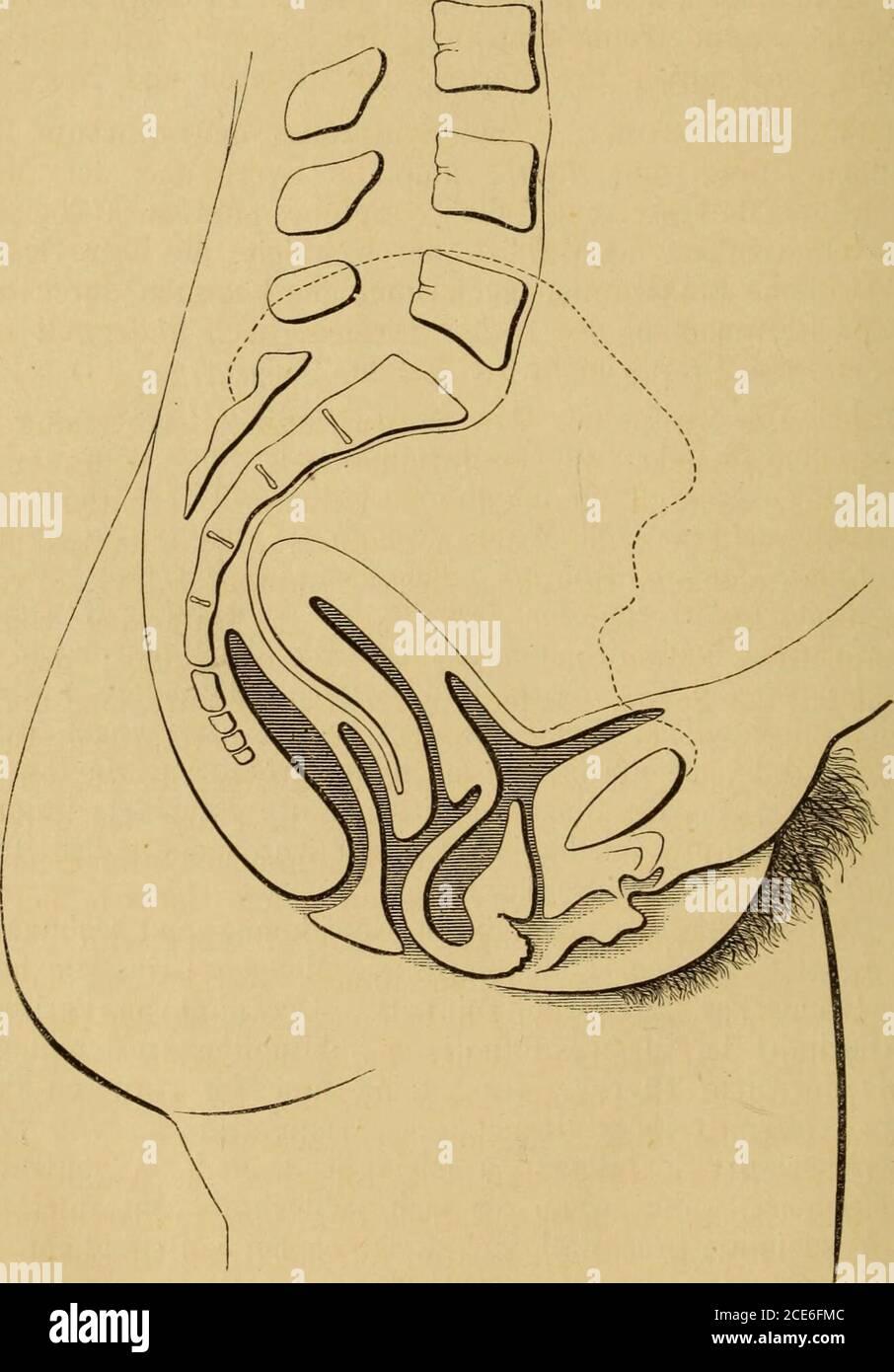 Uterus plumper was bedeutet Gebärmutter