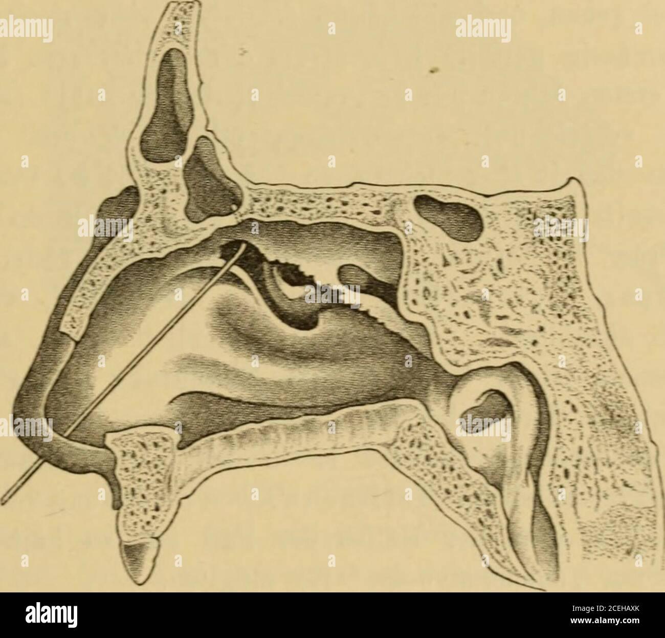 . Handbuch der Laryngologie und Rhinologie ... gte Kichtung zugeben, sondern C hole was 212 Vorschrift zu befolgen: zuerst mitder ganzen Sonde etwas in die Höhe zu gehen und dann erst den Griff Die Untersuchunesmethjden und ihrer Nebenhöhlen. 2±1 zu senken. Derselbe Autor hat im Gegensatz zu Hansberg, welcher,um sieh nicht in die Siebbeinzellen zu verirren, die Sonde mehr nachder Mittellinie dreht, auf anatomische Verhältnisse begründet, seinerle die oben erwähnte mehr lateralwärts gerichtete Krümmung gegeben.Ob die Sondierung wirklich gelungen, oder ob die Sonde nichtdoch in eine der Infundib Stock Photo