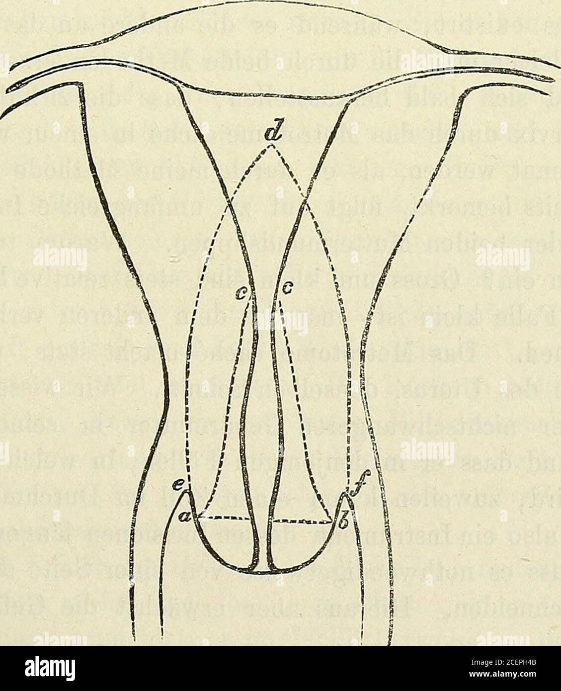 Blutung ohne gebärmutter