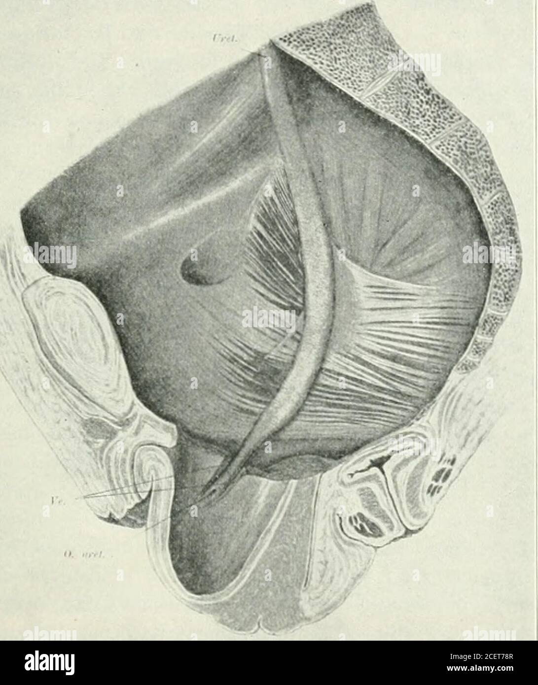 . American journal of obstetrics and gynecology. ilatation.Undoubtedly many gynecologists have noticed dilated ureters in casesof procidentia. There has, hitherto, been no general recognition of thefact that the uterine prolapse may bear an etiologic relationship tothe ureter dilatation. The only reference to this fact that has come •Rc.id at the Forty-eighth Annual Meeting of the American Gynecological Society,Hot Springs. a.. May 21-23, 1923. BRETTAUEK AND RUBIN: HYDROURETER AND HYDRONEPHROSIS 697 to our notice is to be found in the anatomic study of genital prolapseby Tandler and Halban. T Stock Photo