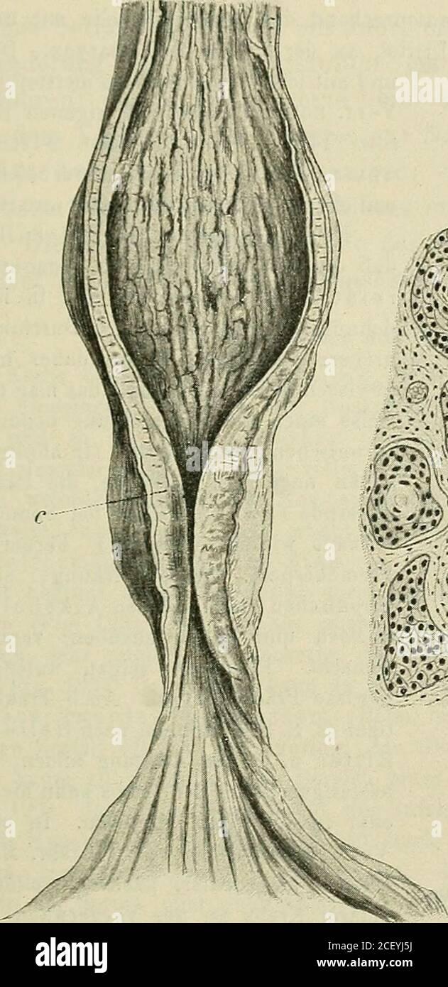 . Lehrbuch der speziellen pathologischen Anatomie für Studierende und Ärzte. ercarcinomen erwähnte Beobachtung des Verf.). Der Krebs hat am häufigsten die Tendenz, sich ringförmig auszu-breiten und Stenose zu bewirken. Seltener findet man die insulare,wandständige Form, die als ulceriertes Infiltrat oder als rundliches oderlängliches Plateau oder als Fungus vorkommt. Ein Teil der Krebse istweich, üppig wuchernd und zerfällt bald zu einem unregelmäßigen, nichtselten verjauchenden Geschwür; andere sind harte Scirrhen, zellärmer, mitstarker bindegewebiger Umwandlung. Die scirrhösen Formen sind of Stock Photo