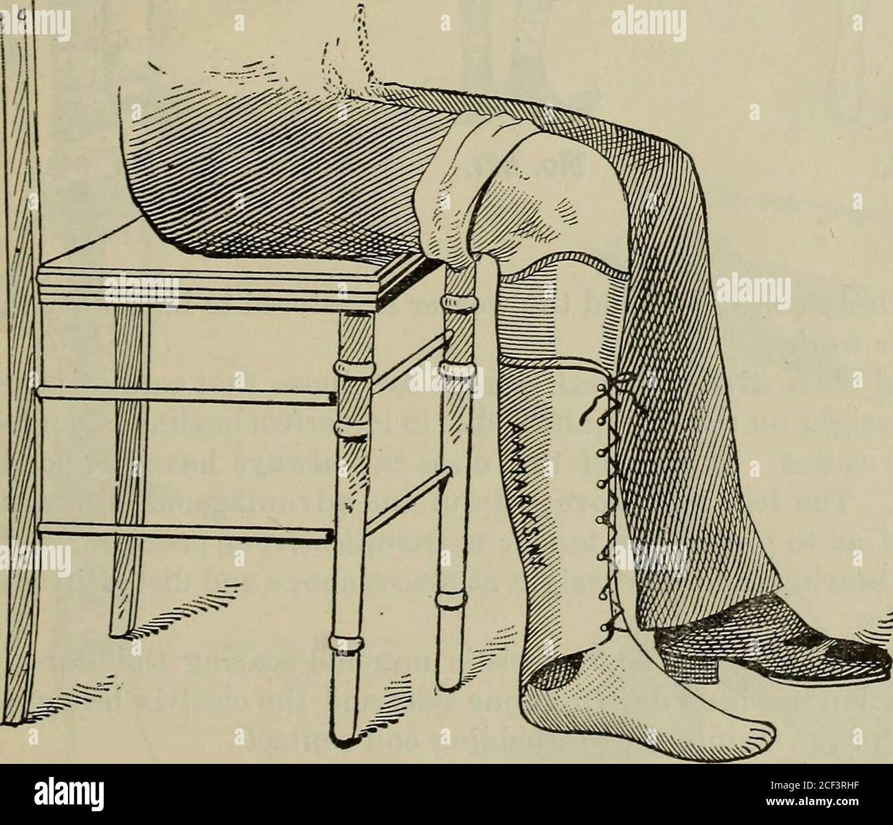 . A treatise on artificial limbs with rubber hands and feet ... No. 644. sequently the No. 641 leg can be made much lighter and possess thesame strength.A stump that is incapable of bearing the entire pressure on its. No. 645. extremity can be provided with a leg, the upper portion of which ismade annular, as represented in Cut No. 644. The annular top willsupport the weight immediately below the knee. The pads for the .:. --L-: :: : - iZ :,: «rS7 : :?:- ::i ::-t-7 : i--::-,. .t-Jt^ ;•; 7.5 ,: :. * .: :  .^  ± - : . : r: t.t :> 7 :•::•: ji. :   :: t7I : . - - ? . -   . r - t   ? - Stock Photo